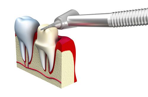 Crowns, Bridges & Implants graphic