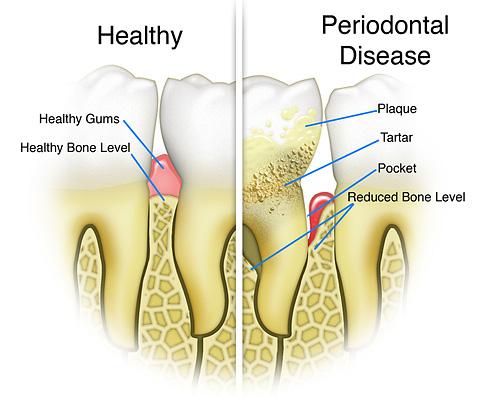 Gum disease graphic